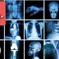 خریدعکس وفیلم رادیولوژی،صنعتی،رادیوگرافی