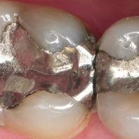 ضایعات وپسماند آمالگام دندان پزشکی